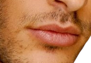 erkek dudak dolgusu